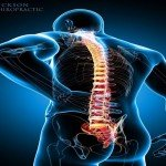 Chiropractic Care - Chiropractors for Back Pain in Dickson