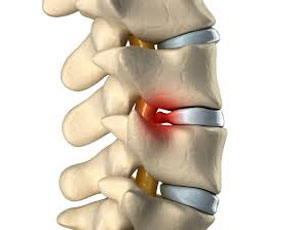 Herniated Disk Injuries