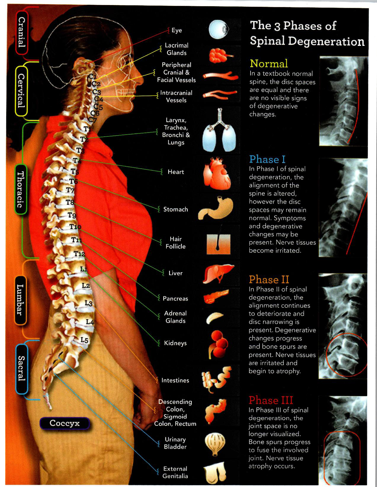 spinal degeneration